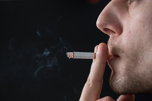 Because of the high rate of smoking in the United States, healthcare management administrators are inundated with claims related to cigarettes, with patients drowning in a cycle of debt.