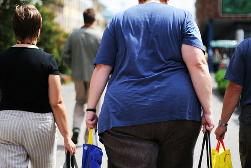 Some experts argue that obesity costs should be transferred to the public sector.